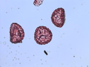 Pollen from the plant Genus Botrychium.
