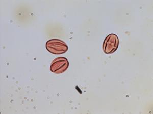 Pollen from the plant Species Saxifraga stellaris.