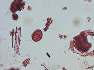 Pollen from the plant Genus Celastrus.