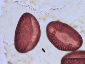 Pollen from the plant Genus Lilium.