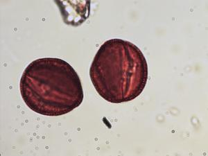 Pollen from the plant Species Gentianella germanica.