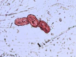 Pollen from the plant Species Pimpinella major.