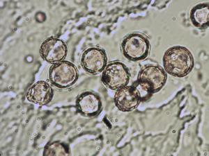 Pollen from the plant Species Thalictrum foetidum.