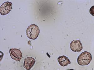 Pollen from the plant Genus Populus.