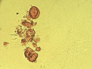 Pollen from the plant Genus Canarina.