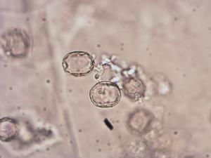 Pollen from the plant Species Symphytum officinale.