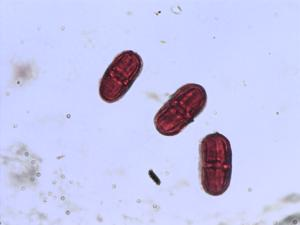 Pollen from the plant Genus Oenanthe.
