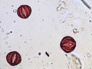 Pollen from the plant Genus Lythrum.