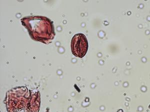 Pollen from the plant Species Sorbus torminalis.