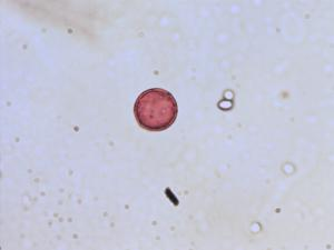 Pollen from the plant Genus Baldellia.