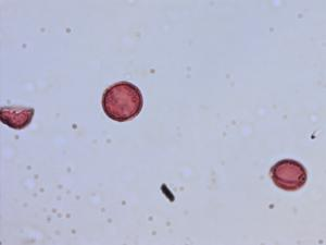 Pollen from the plant Species Pedicularis lapponica.