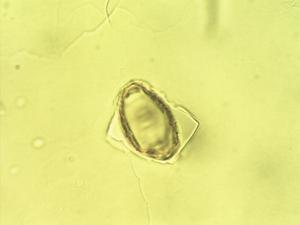 Pollen from the plant Genus Embothrium.