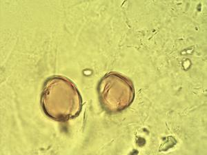 Pollen from the plant Genus Dioscorea.