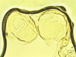 Pollen from the plant Genus Datura.