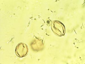 Pollen from the plant Genus Mitraria.