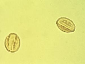 Pollen from the plant Genus Punica.