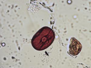 Pollen from the plant Species Lathyrus linifolius.