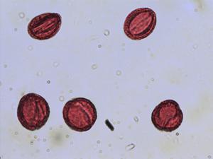 Pollen from the plant Species Ranunculus aconitifolius.