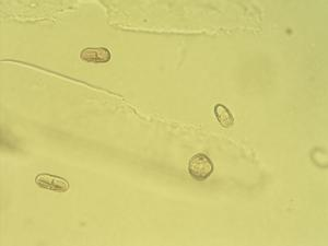 Pollen from the plant Genus Seseli.