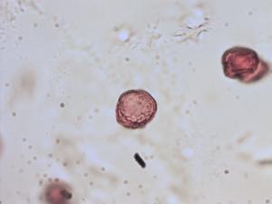 Pollen from the plant Genus Potamogeton.