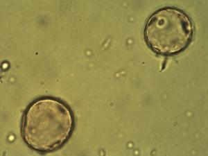 Pollen from the plant Genus Agrostis.