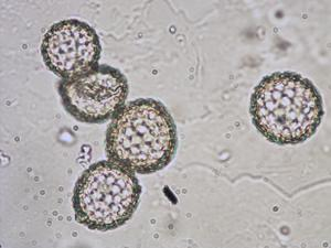 Pollen from the plant Genus Chenopodium.