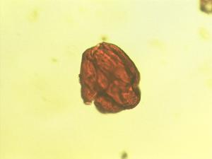 Pollen from the plant Genus Cerbera.