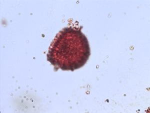 Pollen from the plant Genus Azolla.