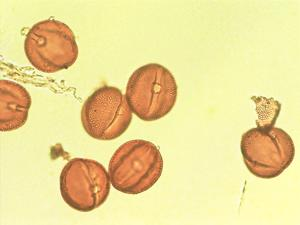 Pollen from the plant Genus Bryonia.