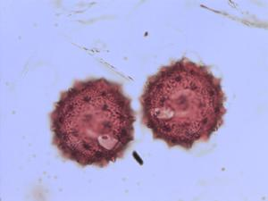 Pollen from the plant Species Cirsium vulgare.