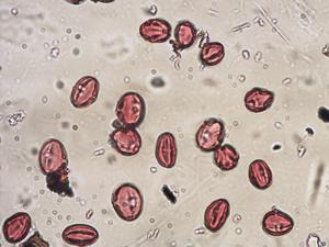 Pollen from the plant Genus Castanea.