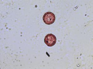 Pollen from the plant Species Thalictrum speciosissimum.