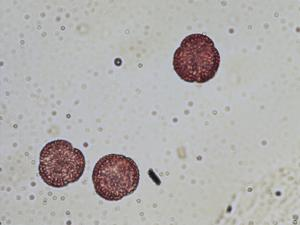 Pollen from the plant Genus Iberis.