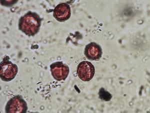 Pollen from the plant Species Sisymbrium orientale.