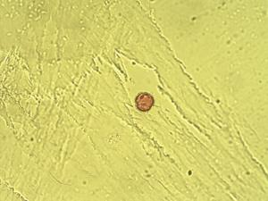 Pollen from the plant Genus Adenocarpus.