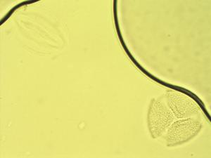 Pollen from the plant Genus Halleria.