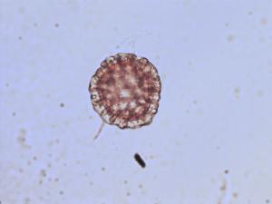 Pollen from the plant Genus Adenostyles.