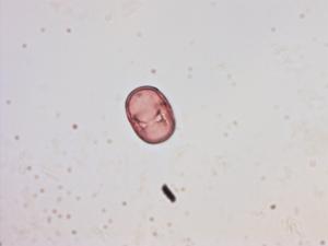 Pollen from the plant Genus Pulmonaria.