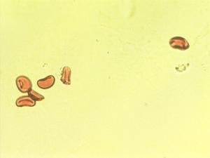 Pollen from the plant Species Asplenium hemionitis.