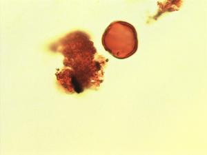 Pollen from the plant Genus Pterocarpus.
