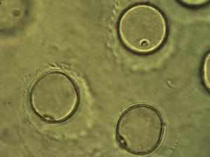 Pollen from the plant Genus Phragmites.