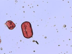 Pollen from the plant Species Melilotus altissimus.