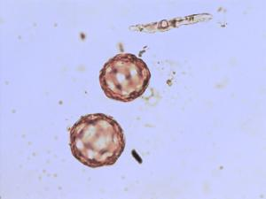 Pollen from the plant Genus Alisma.