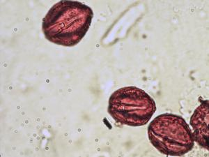 Pollen from the plant Species Gentiana bavarica.