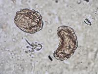 Pollen from the plant Genus Amaranthus.