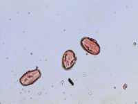 Pollen from the plant Genus Aesculus.