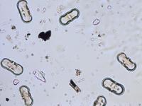 Pollen from the plant Genus Anthriscus.