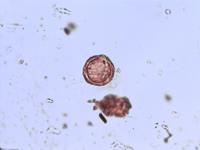 Pollen from the plant Genus Anagallis.