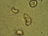 Pollen from the plant Genus Acorus.