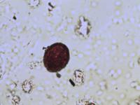 Pollen from the plant Genus Alliaria.